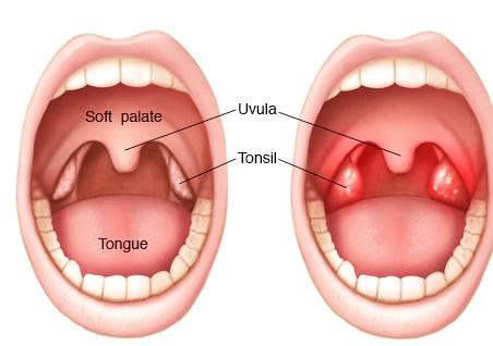 Triệu chứng của bệnh viêm họng viêm amidan