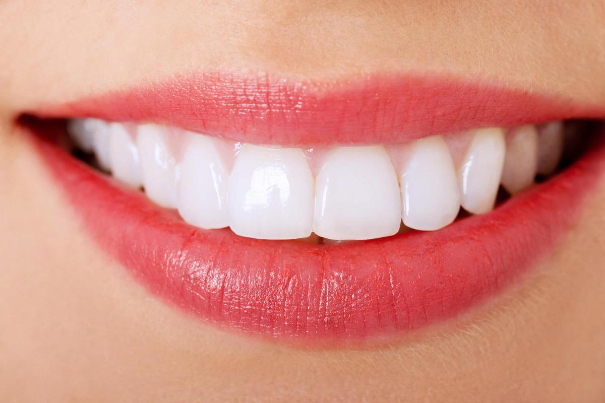 Cách giữ cho răng trắng đẹp không bị sâu răng